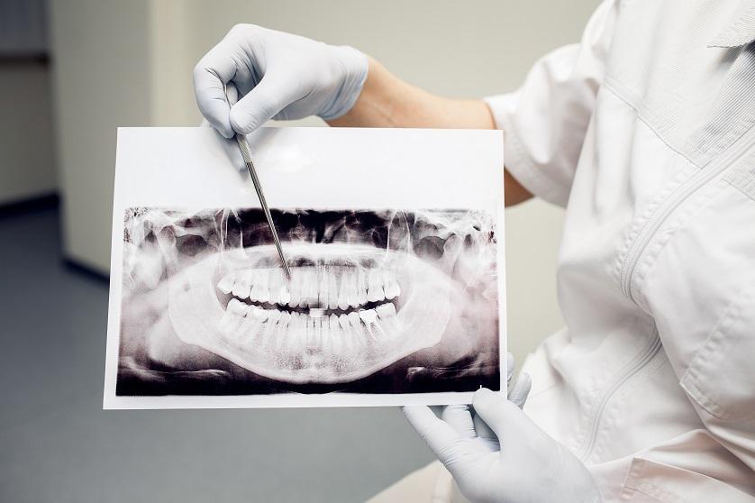 Wurzelkanalbehandlung (Root Canal Treatment) | Ursachen 1