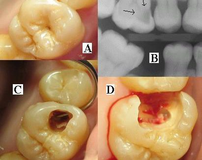 Worried About Decay In Your Tooth? ( Karies im Zahn )
