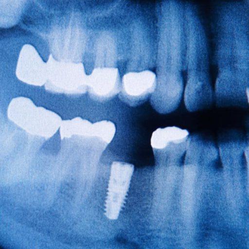 cropped-Implantat-dentist-in-frankfurt.jpg