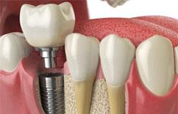Bone substitute material