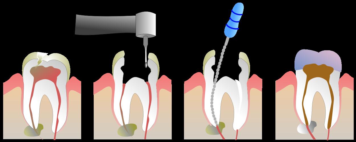 Wurzelkanalbehandlung ( Root Canal Treatment ) | Ursachen 2