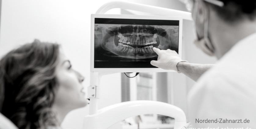 Fragen zu Zahnimplantaten 2