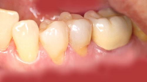 Parodontitis und Behandlung 1