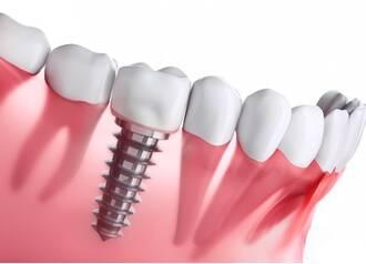 Zahnimplantaten
