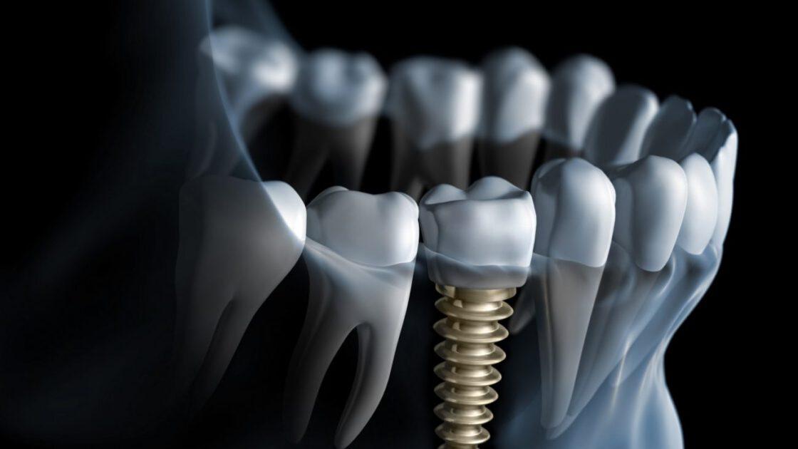 basics of implantologie