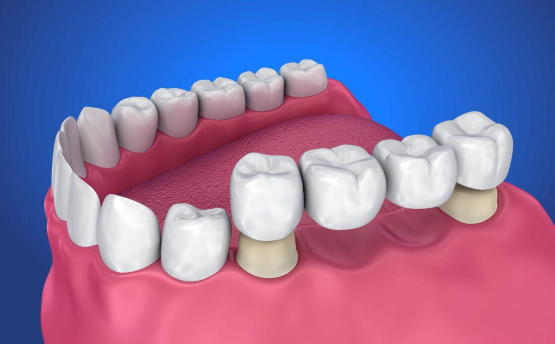 dental brigde
